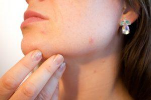 acne treatmente